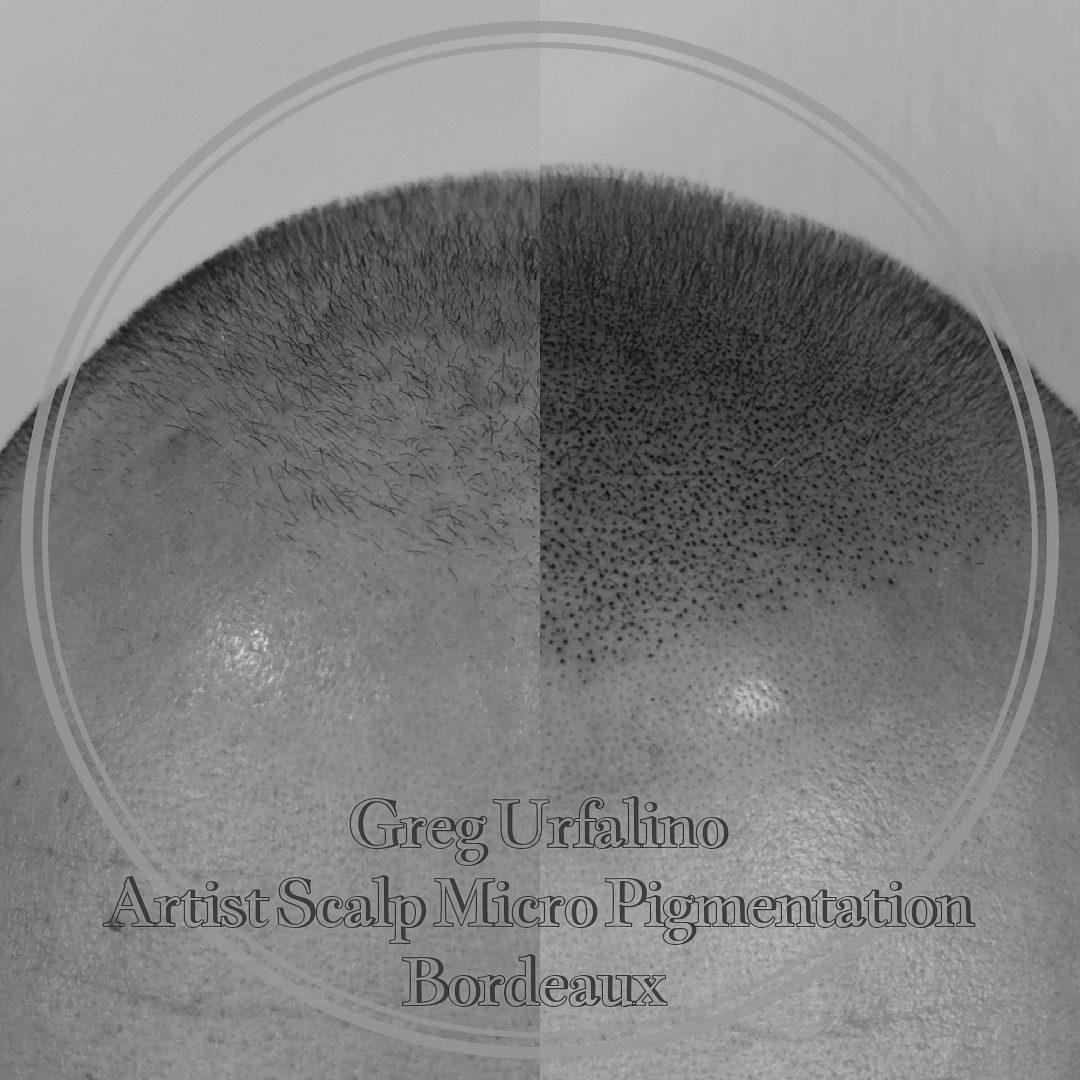 Greg Urfalino artist smp bordeaux #tricopigmentation #tricopigmentationbordeaux #smpbordeaux