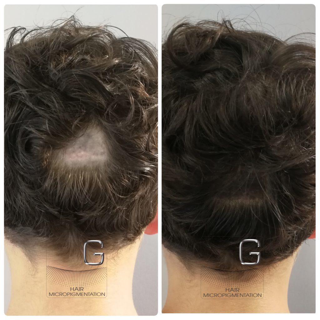 Couverture Cicatrice Centre Celine H Gradignan Greg Hairtricopigmentation