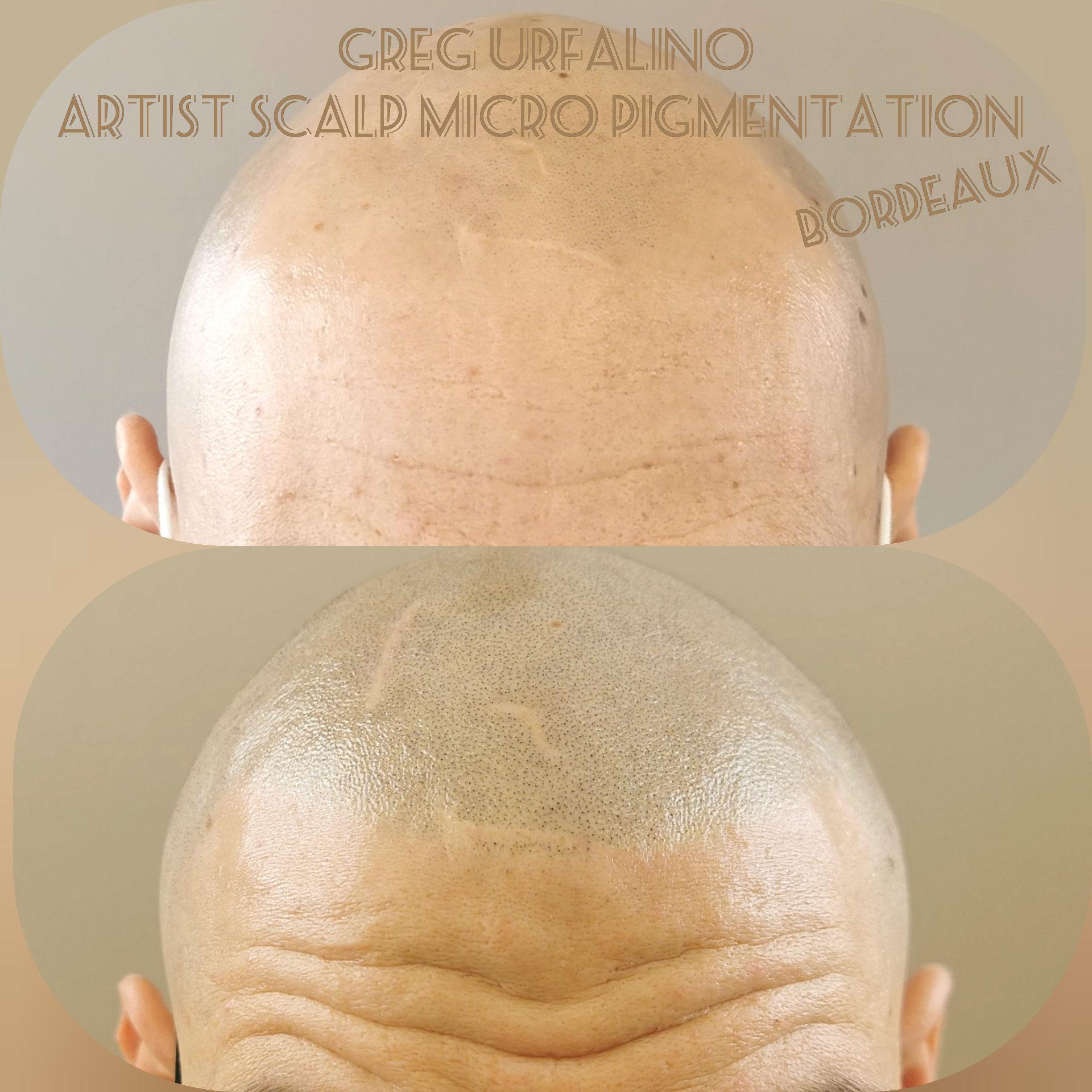 Greg Urfalino artist smp bordeaux #tricopigmentation #tricopigmentationbordeaux #smpbordeaux #tricopigmentation #artisttatoo #bordeaux