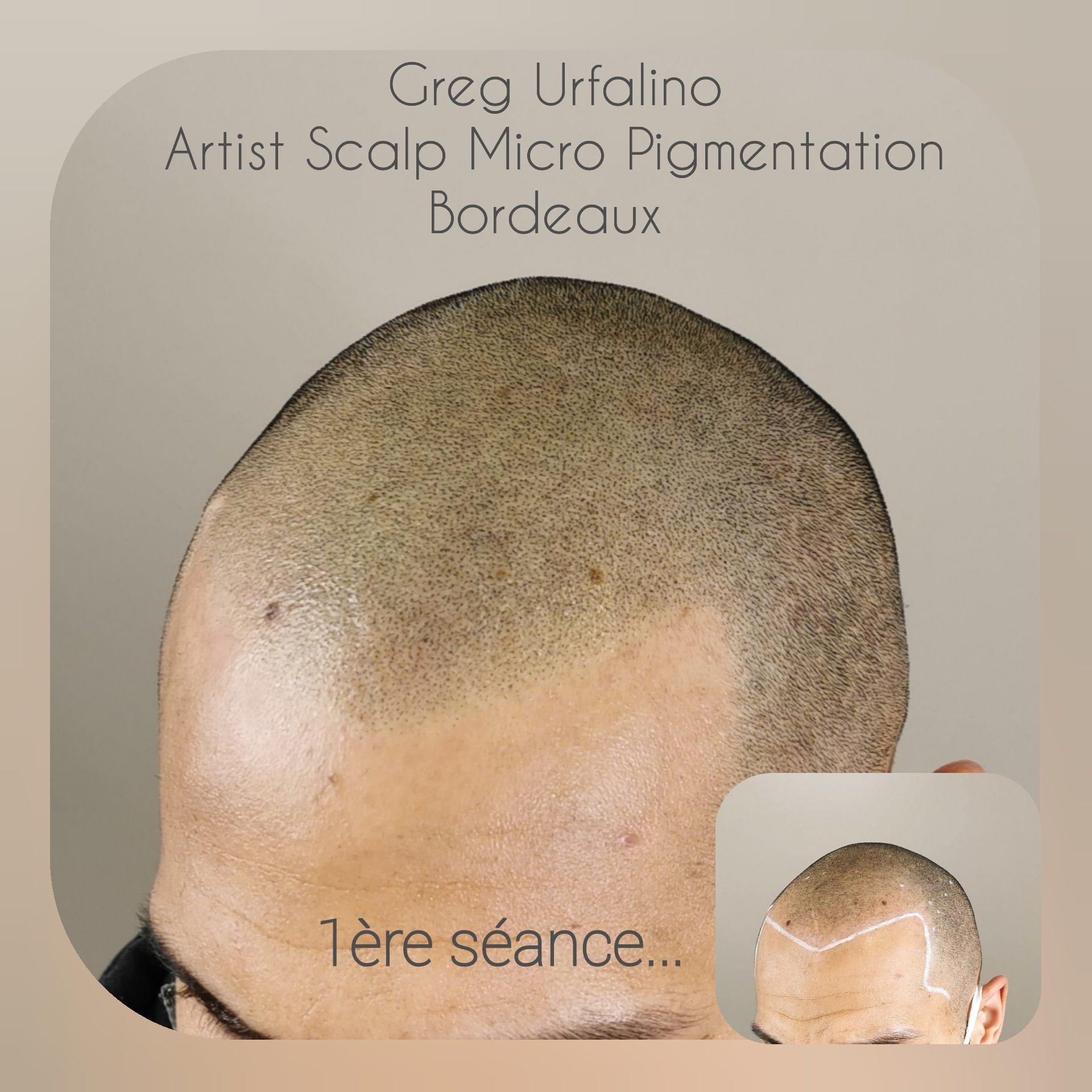 Greg Urfalino artist smp bordeaux #tricopigmentation #tricopigmentationbordeaux #smpbordeaux #tricopigmentation #artisttatoo #bordeaux #tricopigmentationfrance #tatouagecuirchevelu #smp #pigmentbioresorbable #greffecapillaire